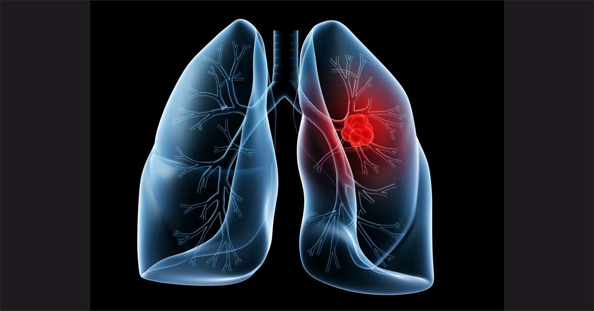 Discovery of distinct lung cancer prognosis may lead to more targeted treatments
